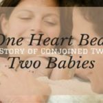 One Heart Beat, Two Babies: A Story of Conjoined Twins