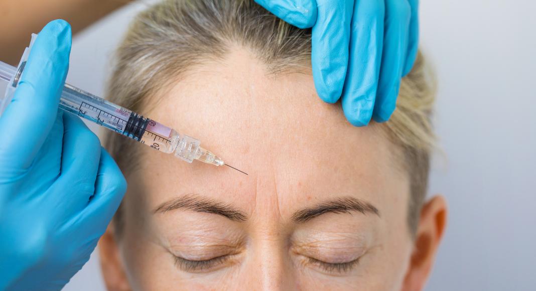 Mom Confession: I Get Botox