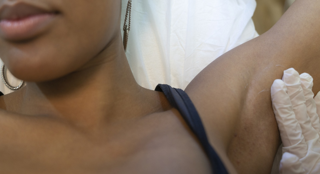 Laser Hair Removal: The Good, The Bad and the Hairless